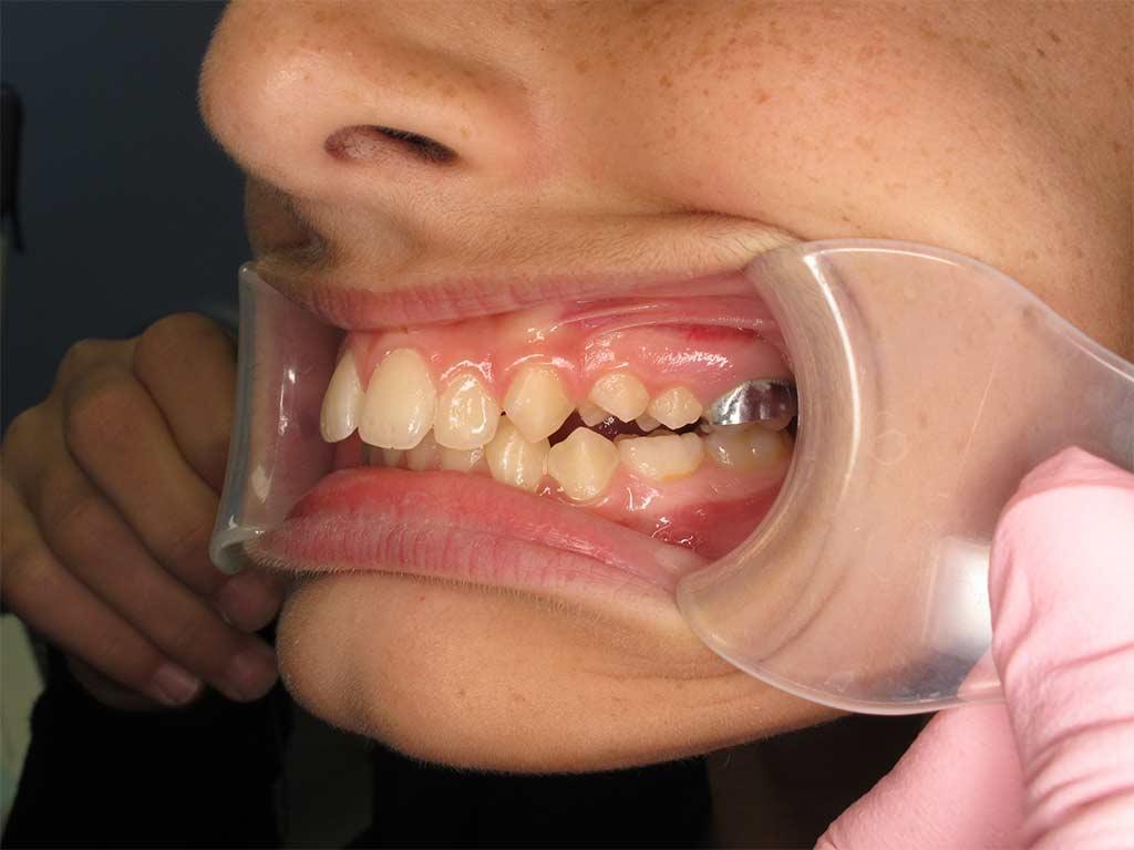 Left side of teeth